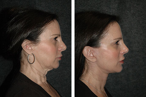 neck lift before and after photos - patient 3