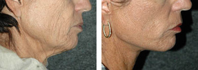 neck lift before and after photos - patient 6