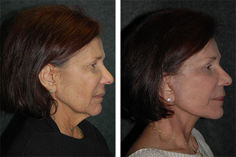 platysmaplasty before and after photos - patient 1