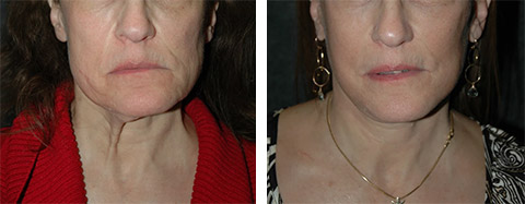 platysmaplasty before and after photos - patient 4