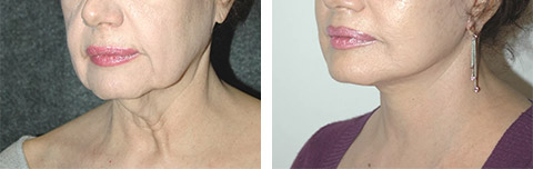 platysmaplasty before and after photos - patient 5