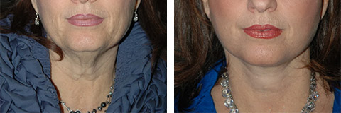 platysmaplasty before and after photos - patient 6