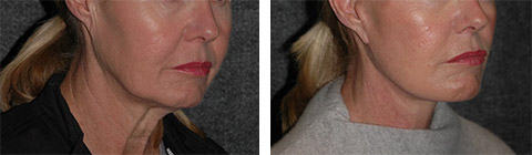 platysmaplasty before and after photos - patient 7