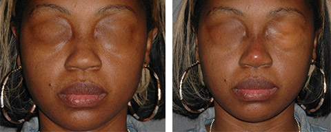 African American Rhinoplasty photos - patient 3