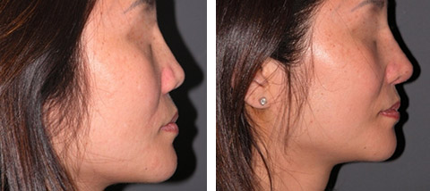 Asian Rhinoplasty photos - patient 1