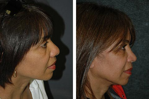 Hispanic Rhinoplasty photos - patient 3