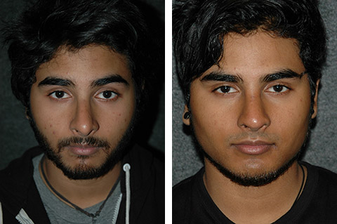 Male Rhinoplasty photos - patient 2