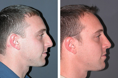 Male Rhinoplasty photos - patient 3