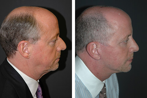 Male Rhinoplasty photos - patient 4