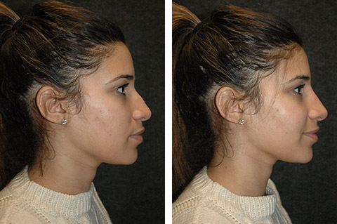 Non-Surgical Rhinoplasty photos - patient 1