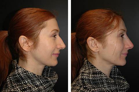 Non-Surgical Rhinoplasty photos - patient 2