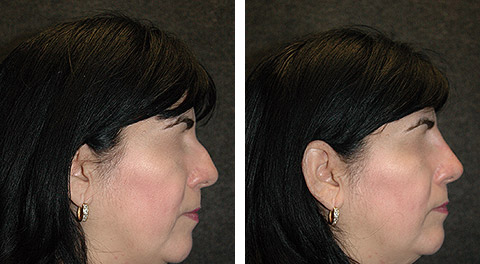 Non-Surgical Rhinoplasty photos - patient 3