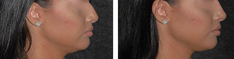 Non-Surgical Rhinoplasty photos - patient 5