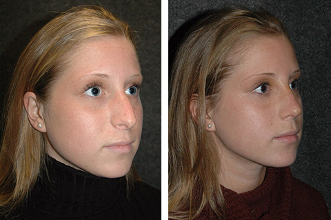 Rhinoplasty photos - patient 2