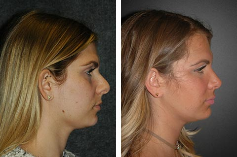 Rhinoplasty photos - patient 3