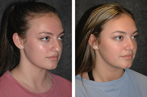 Rhinoplasty photos - patient 4