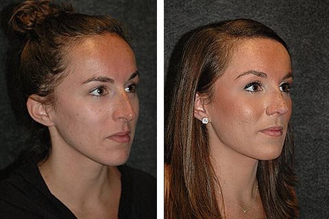Rhinoplasty photos - patient 5