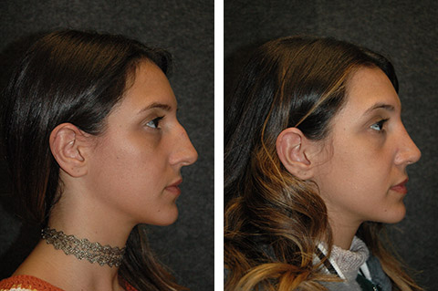 Rhinoplasty photos - patient 6