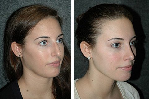 Rhinoplasty photos - patient 7